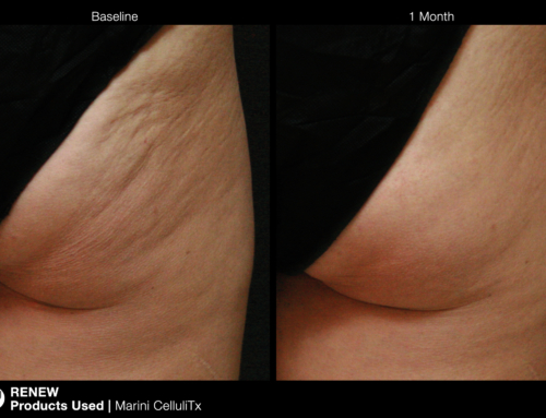 Cellulite – need I say more?